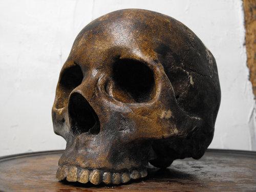 Atlas of the Human Skull